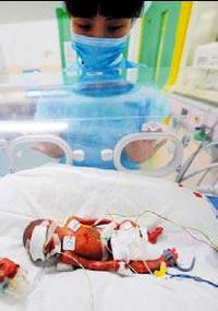 6 Aylık Doğan Bebek 500 Gram Ağırlığında